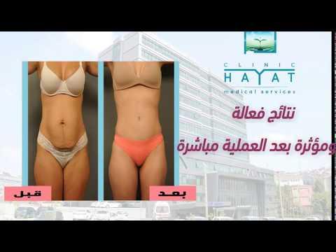 عملية شفط الدهون في تركيا الاسعار والتفاصيل