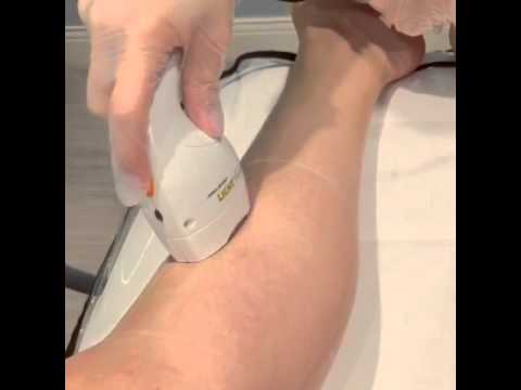 How does laser hair removal work? -Calgary laser clinic