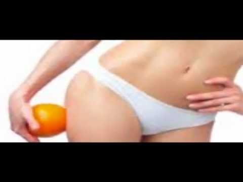 Expert Liposuction – Auburndale, FL – Ezra Agency – 321-939-3409