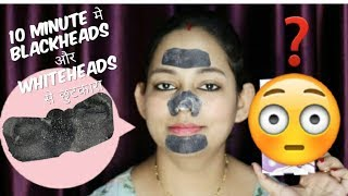 Remove Blackheads & Whiteheads From Face ( NOSE, CHIN & FOREHEAD ) || HipHop Charcoal Strips