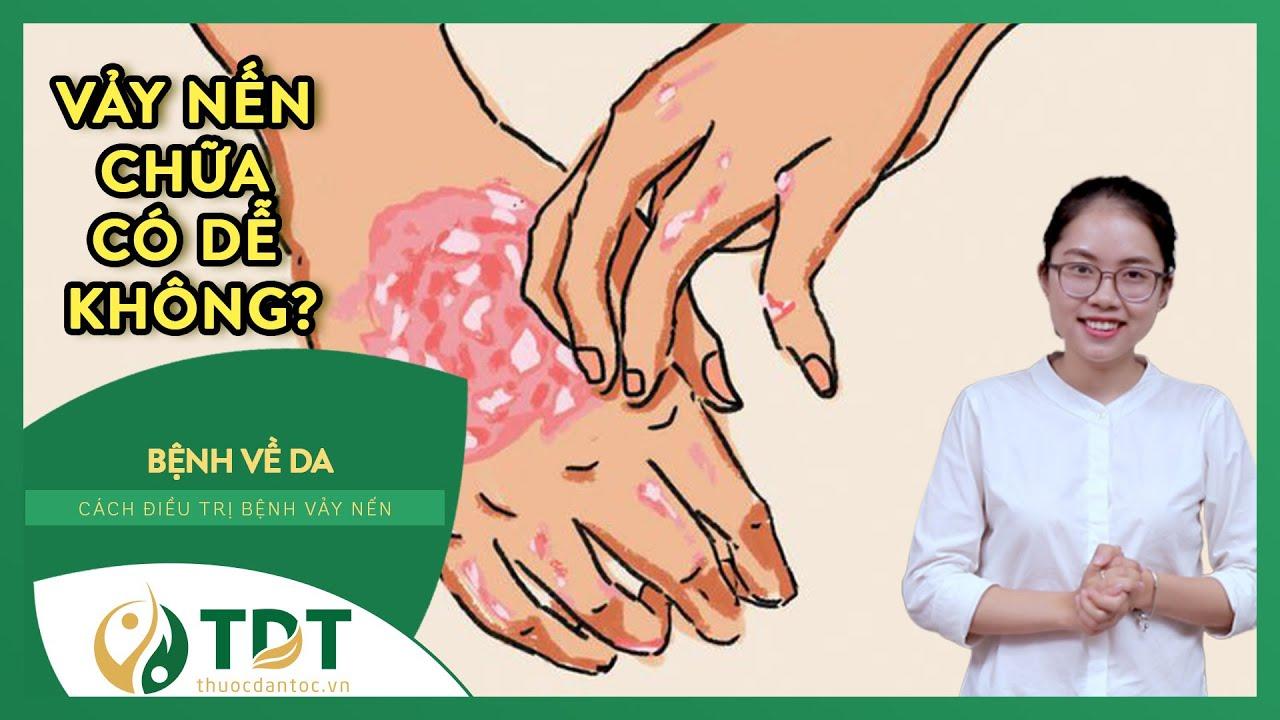 Bệnh Ngoài Da: Bệnh Vảy Nến Điều Trị Có Dễ Không? Các cách trị bệnh Vảy Nến Hiệu Quả  - TDT