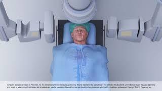Animation of Thrombectomy Using Aspiration