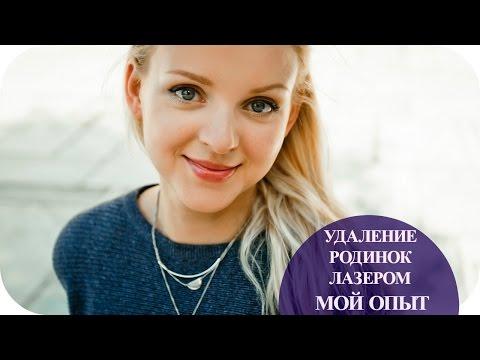 Эпиляция и удаление родинок лазером 8 клиник в Москве