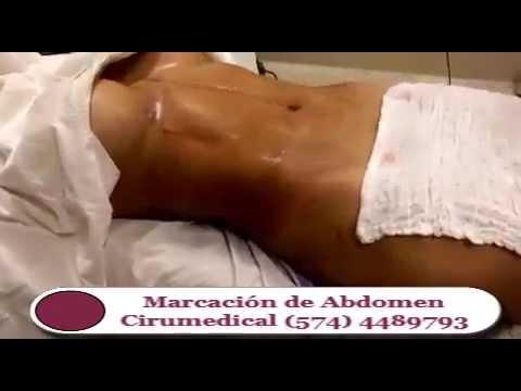 cuanto cuesta liposuccion abdomen