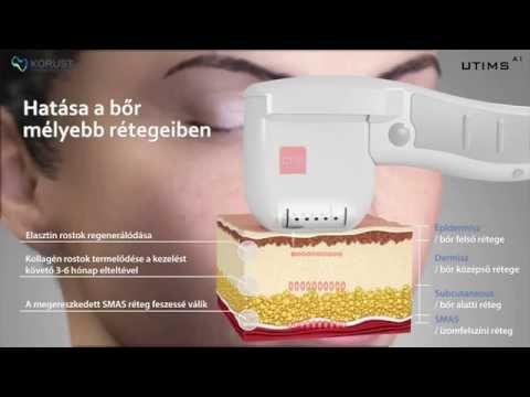 A Bársony Orvos-Esztétika legújabb kezelését bemutató videója. Feliratozás, effektezés, minden ami a hatásos bemutatáshoz szükséges.