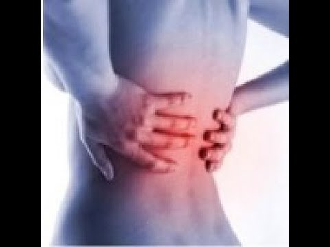 Хондроз – причины и симптомы хондроза