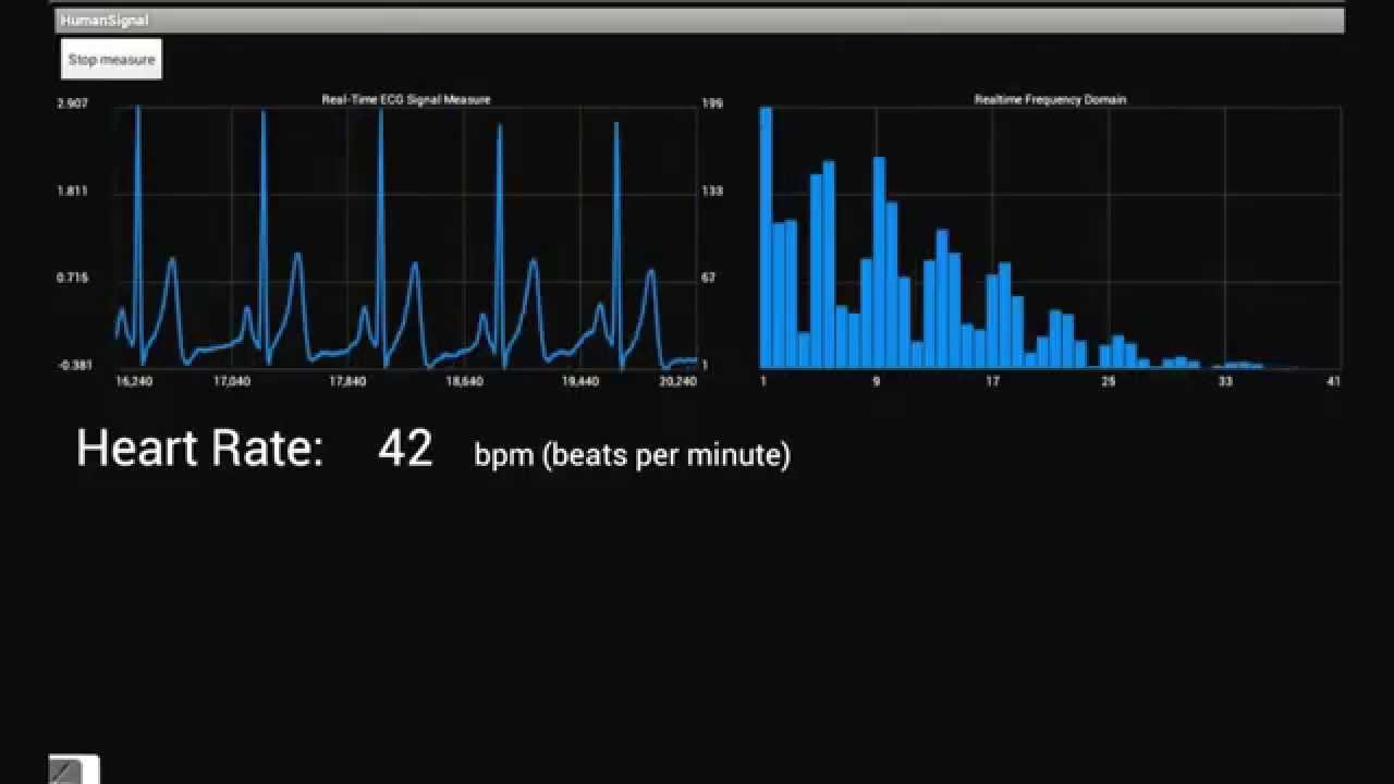 Demo ECG Signal Analysis on Android Tablet
