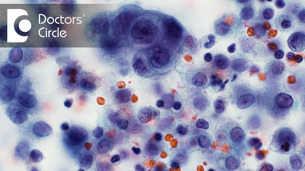 What is Cytopathology? What are the different types of Cytology test ...