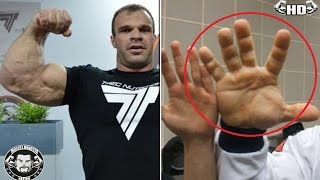 The Real Life HULK Actually Exists - Man With The BIGGEST Hands And Fingers