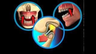 Bolesti čelistního kloubu