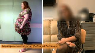 СЛИВ, продольная резекция желудка, рукавная гастропластика, похудение, отзыв