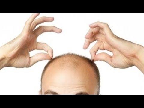 100% РЕЗУЛЬТАТ! СОВЕТСКИЙ РЕЦЕПТ для роста и укрепления волос.