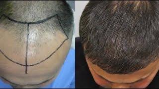 ملعقة واحدة و يزول الصلع و الشيب النتيجة ممتازة لإنبات الشعر و تكثيفه و علاج تساقطه !