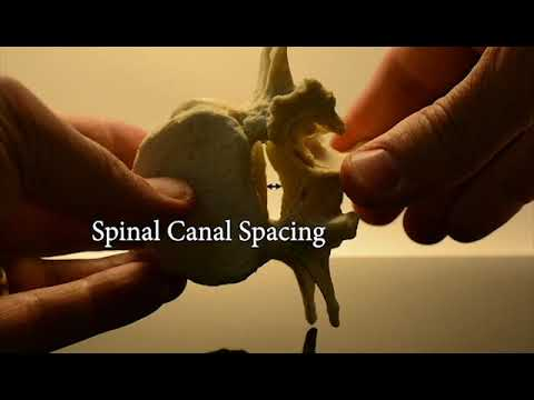 Lumbar Spinal Stenosis Model Dynamic Extension and Flexion - Learning the Mechanics