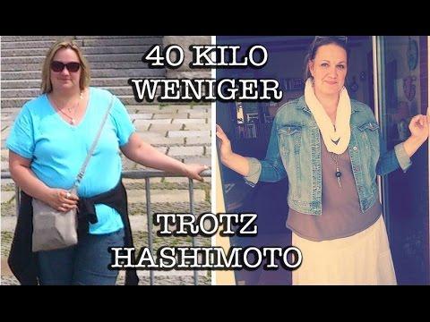 hashimoto thyreoiditis gewichtszunahme