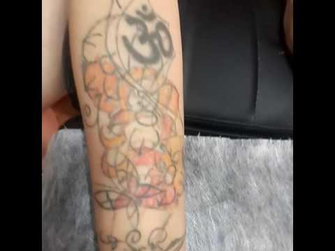 Лазерное удаление тату