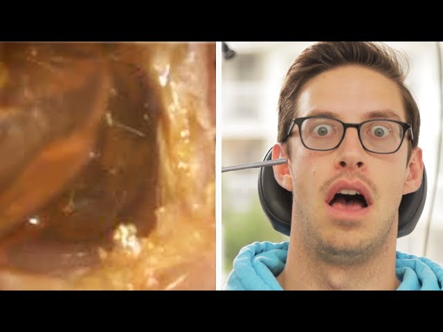 The Try Guys Get Earwax Extractions