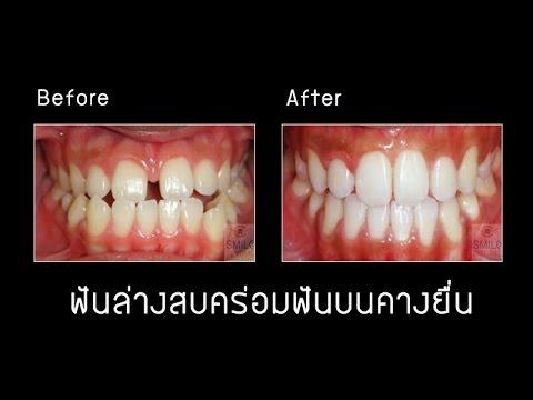 เคสฟันล่างสบคร่อมฟันบนคางยื่น