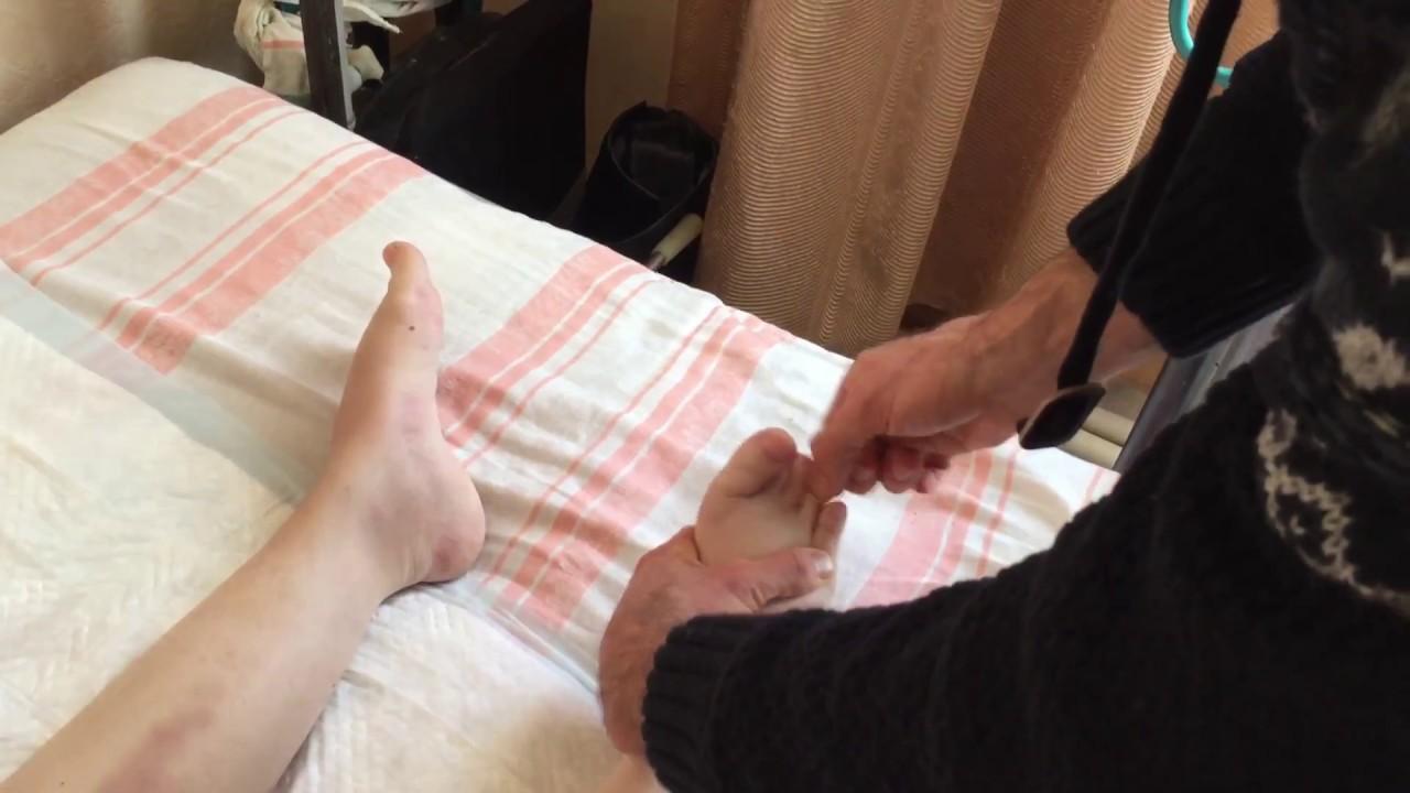 Как вылечить артрозы, артриты и отёчность ног с помощью физиопрактики!
