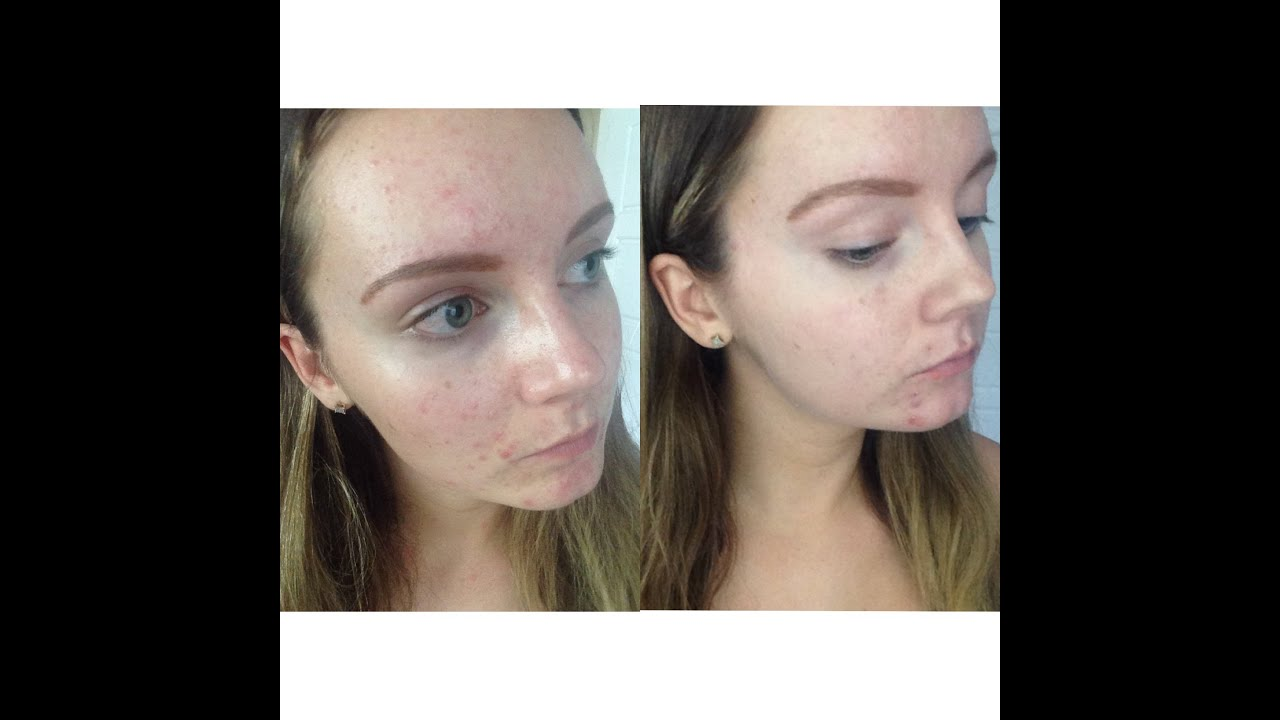 Isotretinoin For Acne Reviews