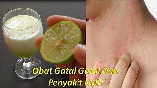 Penyakit kulit menahun, Panu, Kadas, Kurap, Kudis, hilang tuntas |Cara mengobati penyakit kulit|.