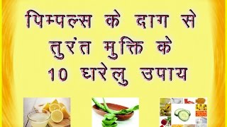 How to remove pimple marks from face fast naturally at home in hindi with 10 simple home remedies