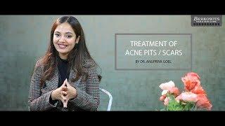 Treatment of Acne Pits / Scars By Dr  Anupriya Goel