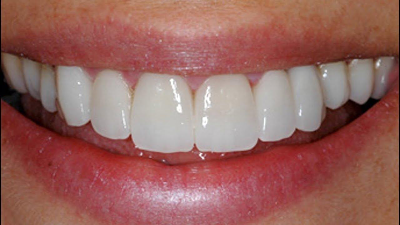 3c1526bd1bc6 Qual a Durabilidade de uma Prótese Dental Fixa? Próteses Dentárias ...
