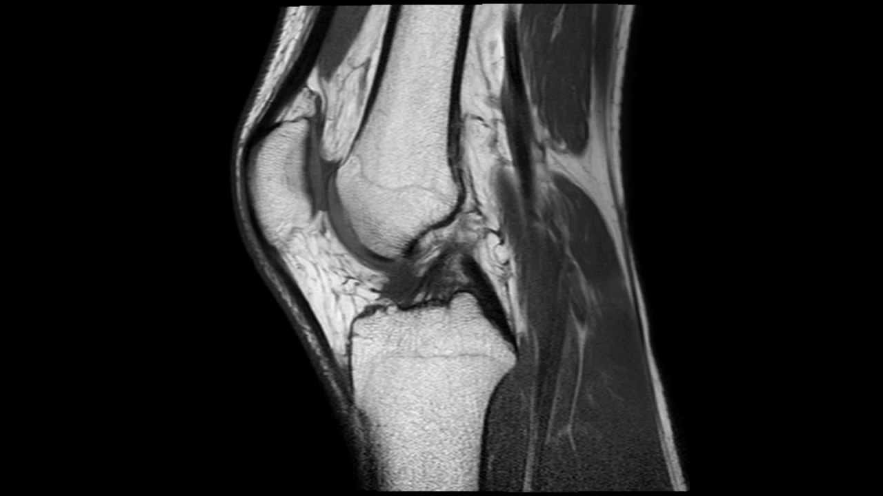 knee mri - Akba.greenw.co