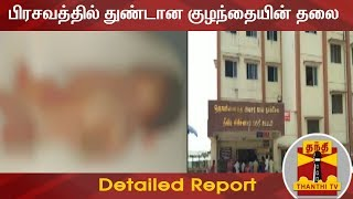 பிரசவத்தில் குழந்தையின் தலை துண்டானது : அரசு ஆரம்ப சுகாதார நிலையத்தில் விபரீதம் | Detailed Report