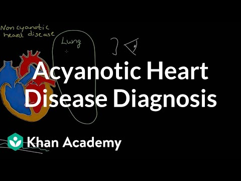 Acyanotic heart disease diagnosis | Circulatory System and Disease | NCLEX-RN | Khan Academy