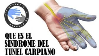 En el indice la de dolor mano izquierdo dedo