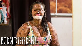 My Skin Condition Hasn't Stopped Me Finding Love | BORN DIFFERENT