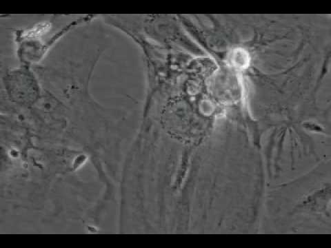 Beating Heart Cell - A beating heart cell video produced by researchers from the Gladstone Institute.
