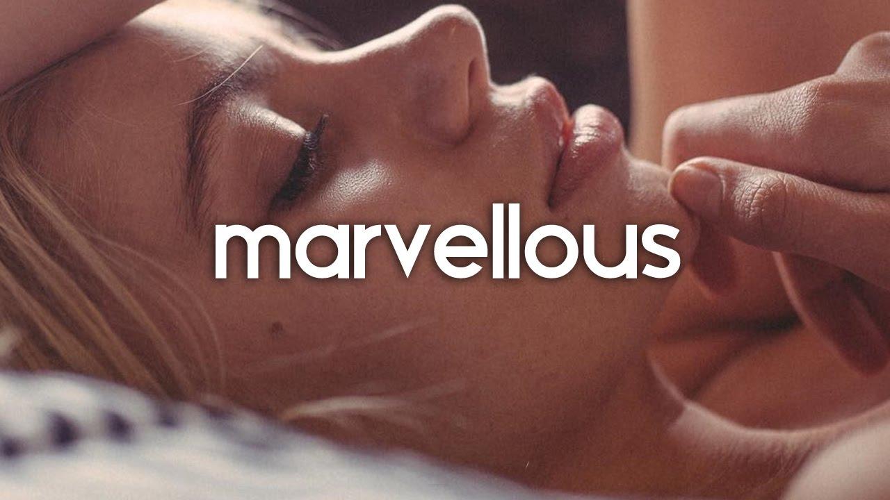 matthew-koma-kisses-back-amice-remix-marvellous