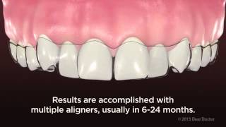 ClearPath Aligners - NEW VIDEO for PATIENT EDUCATION by AACD