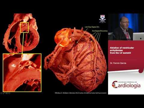 Ablation of idiopathic left ventricular tachyarrhythmias