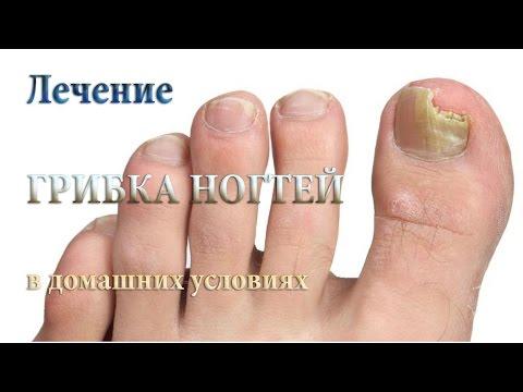 Онихомикоз (грибок ногтей). Причины, симптомы, признаки