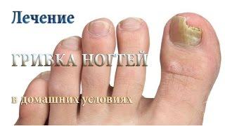 видео Лечение от грибка  ногтей (онихомикоз) как лечить грибок на ногах здоровье