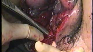 Repeat youtube video Perineal Repair
