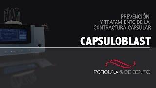 Prevención y tratamiento de la contractura capsular: CAPSULOBLAST