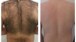 SOLUTION FOR Body hair Very good recipe for removing unwanted hair