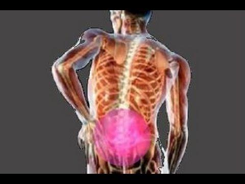 Остеохондроз пояснично крестцового отдела позвоночника симптомы
