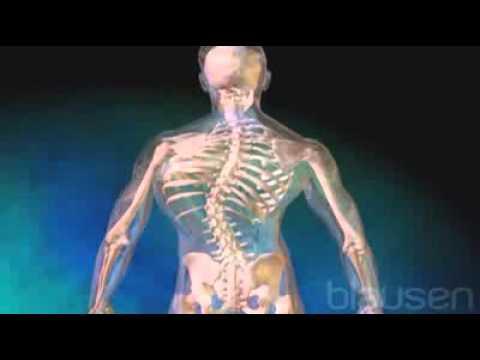 Como curar sheynyy la osteocondrosis en la edad avanzada