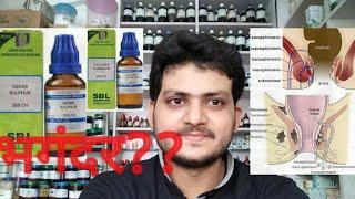 Anal fistula! Homeopathic medicine for anal fistula? explain? भगंदर??