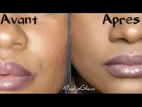 peau grasse solution