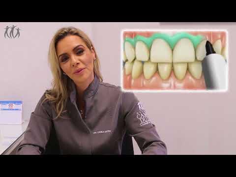 effeac142df7c Clareamento Dental   Dra. Camila Dutra - YouTube