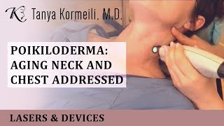 Poikiloderma: Aging Neck and Chest addressed!