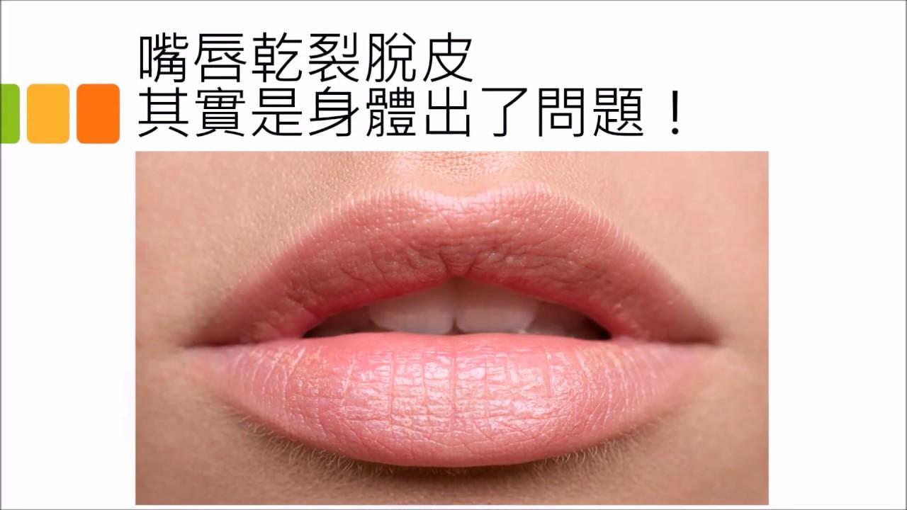 嘴唇乾裂脫皮 中醫教你嘴唇保養 - YouTube