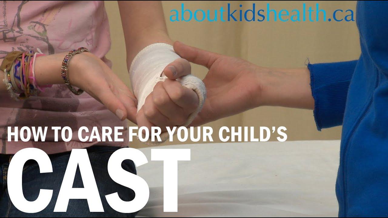 Cast care: Arm or leg cast